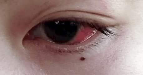 強膜炎で赤くなった目